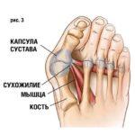 Первый плюсне-фаланговый сустав, или Косточка на ноге
