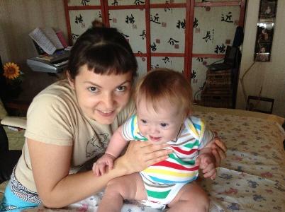 Лечение детей с синдромом Дауна