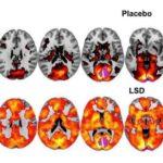 МРТ головного мозга до и после коррекции